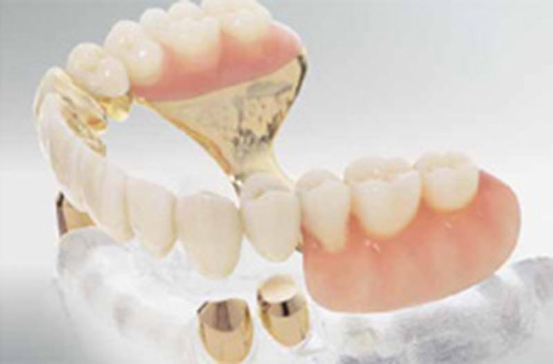 Kombinierter Zahnersatz